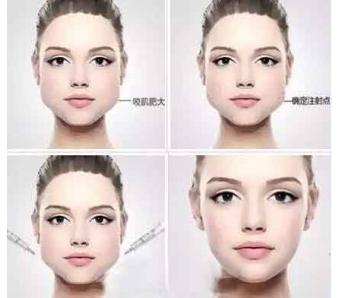 上海美莱王琳说—作自体软骨隆鼻失败还可以再修复吗
