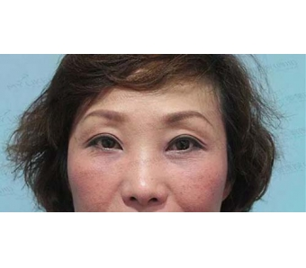 上海美莱为我们讲解|瘦脸针注射针作用原理
