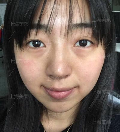 做开眼角手术会不会有副作用呢?上海整形医院?