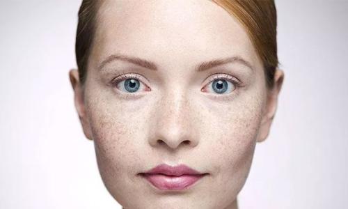 美莱做假体隆鼻整形有效果吗?