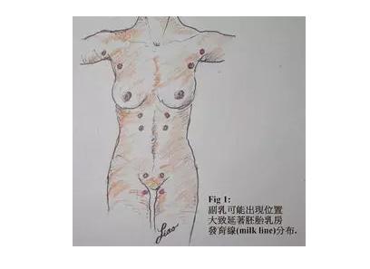 上海做祛斑哪家好,美莱告知男人脸上长斑什么原因?