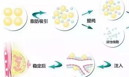 美莱玻尿酸丰下巴应该怎么护理?