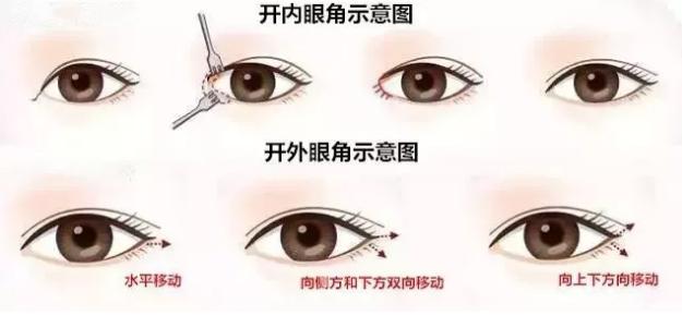 上海的光子嫩肤技术究竟咋样