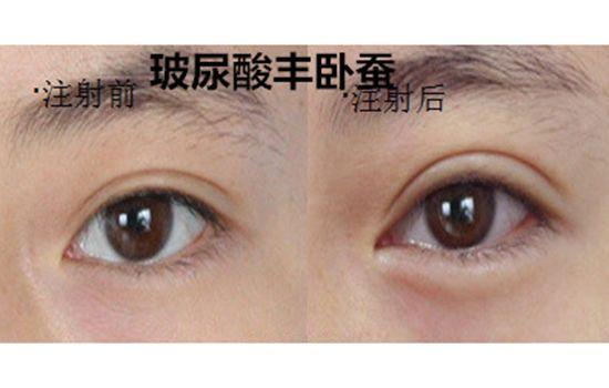美莱医生告诉你:双眼皮术后护理是怎么样的?