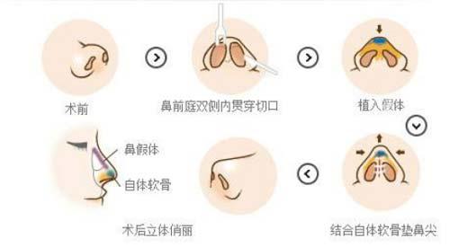 上海缩小鼻孔好吗,会不会留疤呢?