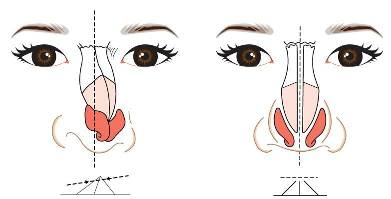 做了硅胶隆鼻注意事以及项术后恢复怎么弄
