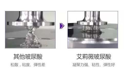 上海美莱汪灏:假体隆胸如何更好分辨出来