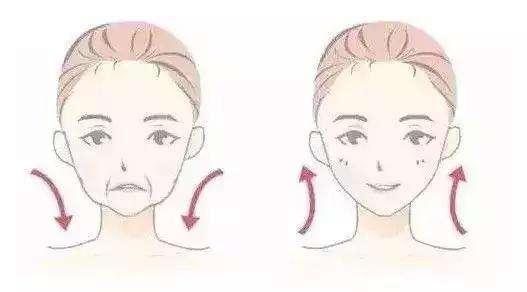 美莱丰苹果肌之后,给整张脸带来了怎样的变化?