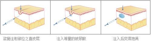 龅牙矫正手术,上海美莱矫正需要了解下