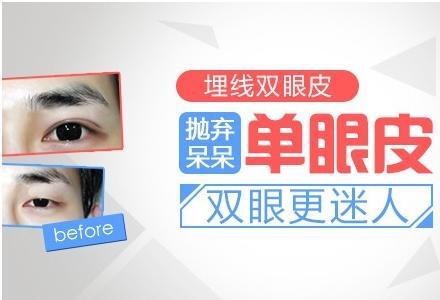 上海开眼角的手术要多少钱啊?