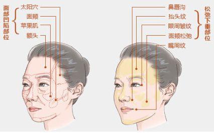 如何选择更加适合的隆鼻假体