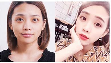 上海美莱腰部抽脂手术,您值得信任与选择!