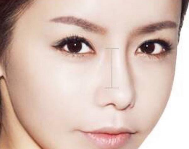 上海双眼皮埋线适合哪些人?