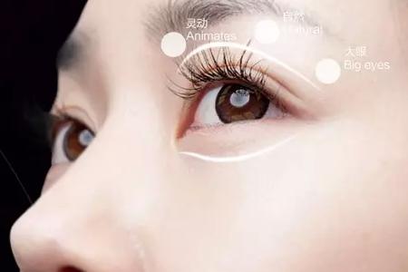 上海割双眼皮要打麻醉吗?