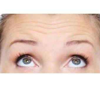 美莱做一个双眼皮埋线能坚持多久