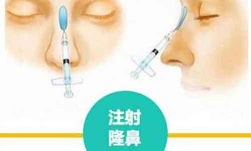 美莱医生教你:鼻头缩小怎么预防增生?
