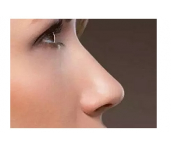 祛眼袋手术失败怎么修复