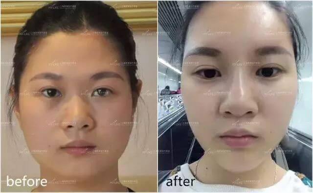 上海做黑脸娃娃几天可以化妆?
