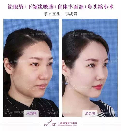 上海月经期间可以打瘦脸针吗