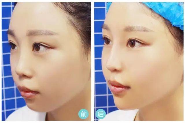 上海打瘦脸针后可以化妆吗