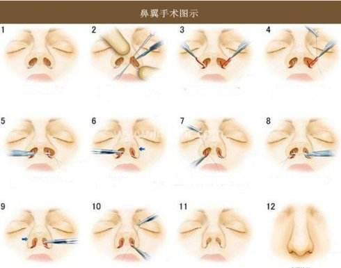 上海全切双眼皮一般缝几针