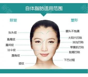 上海耳软骨垫鼻尖会被吸收吗