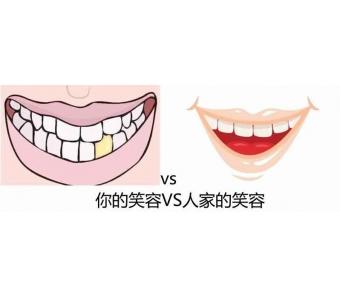 上海什么是自体脂肪隆鼻
