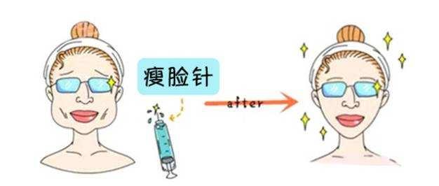 上海达拉斯鼻综合保持几年