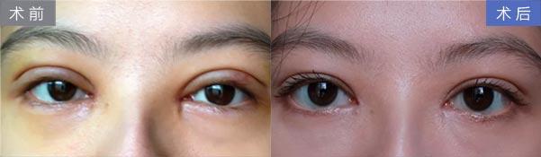 上海割双眼皮会疼吗