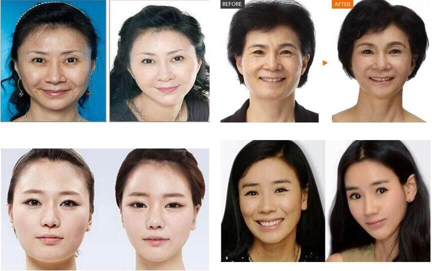 上海戴牙套影响怀孕吗