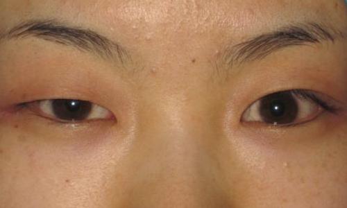 上海做个激光祛眼袋多少钱