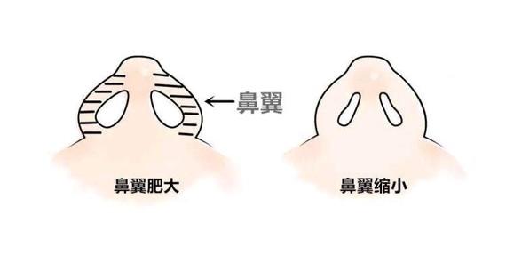 上海激光去眼袋效果好不好