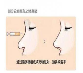 上海玻尿酸注射隆鼻需要多少钱