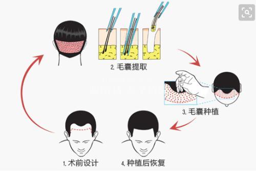 上海冷光美白牙齿效果可以维持多久