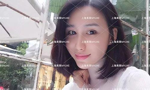 上海激光祛斑会损伤好的皮肤吗
