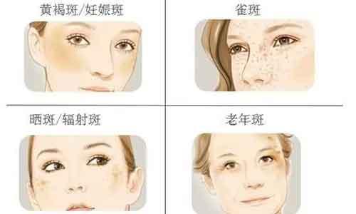 上海割双眼皮几天能消肿