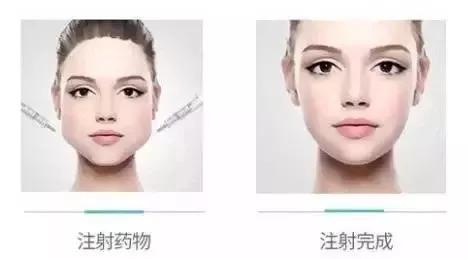上海全切双眼皮的恢复期是多久