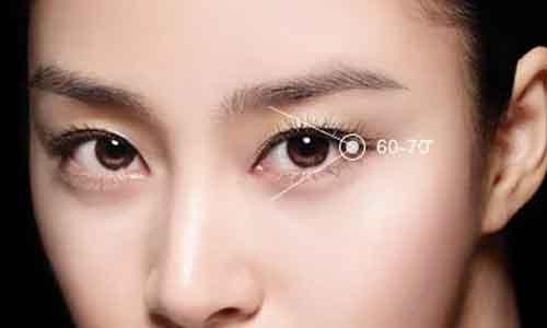 上海割双眼皮几天可以拆线呢