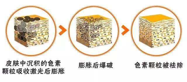 上海埋线双眼皮多久恢复可以上班