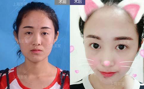 双眼皮失败如何修复,一年可以修复几次