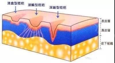 上海皮秒祛斑后要注意什么