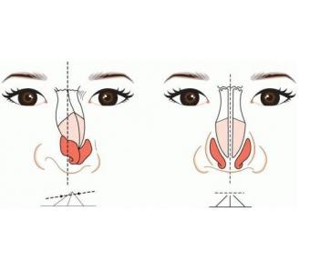 上海割双眼皮的恢复是多久,期间要注意什么
