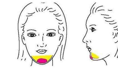 彩光祛斑后皮肤容易过敏吗