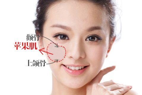上海做光子嫩肤需要多少钱