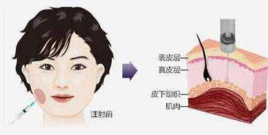 上海双眼皮埋线用拆线吗