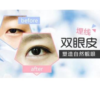 上海割双眼皮多久恢复自然呢