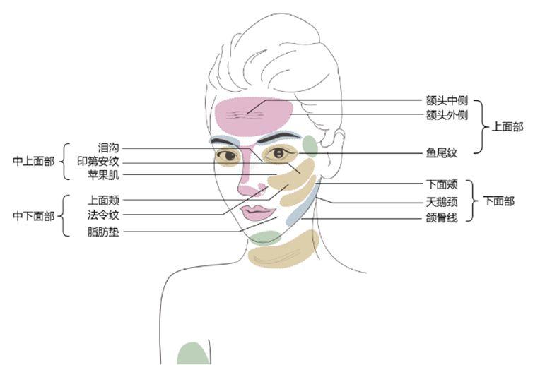 上海美莱切开双眼皮多久能恢复