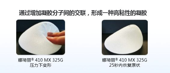 上海美莱割双眼皮多久能消肿