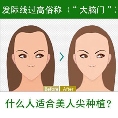 上海美莱打瘦脸针后注意事项
