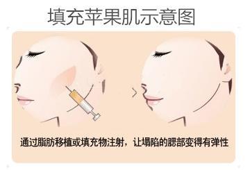 上海美莱注射除皱能维持多久